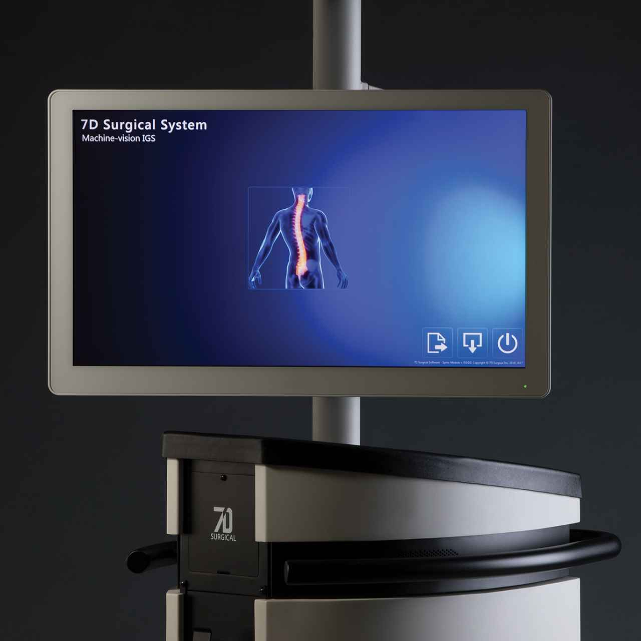 Spine Navigation Machine-vision Image Guided Surgery (MvIGS