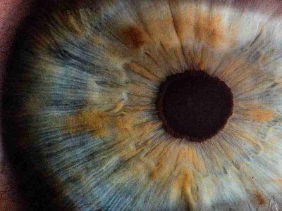 SurgicalOne Eye