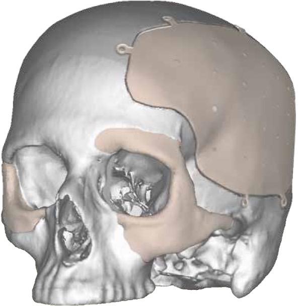 Kelyniam Integrated Fixation System Fullskull Tabs Facial